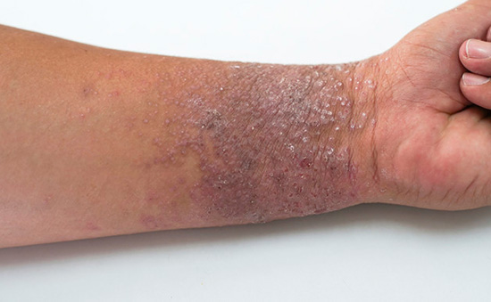 Eczema on the inside wrist of brown skin, showing as itchy-looking, small, purplish blisters.