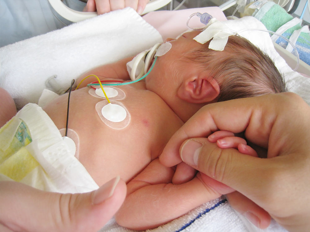 The NICU & your baby: what to expect | Raising Children Network