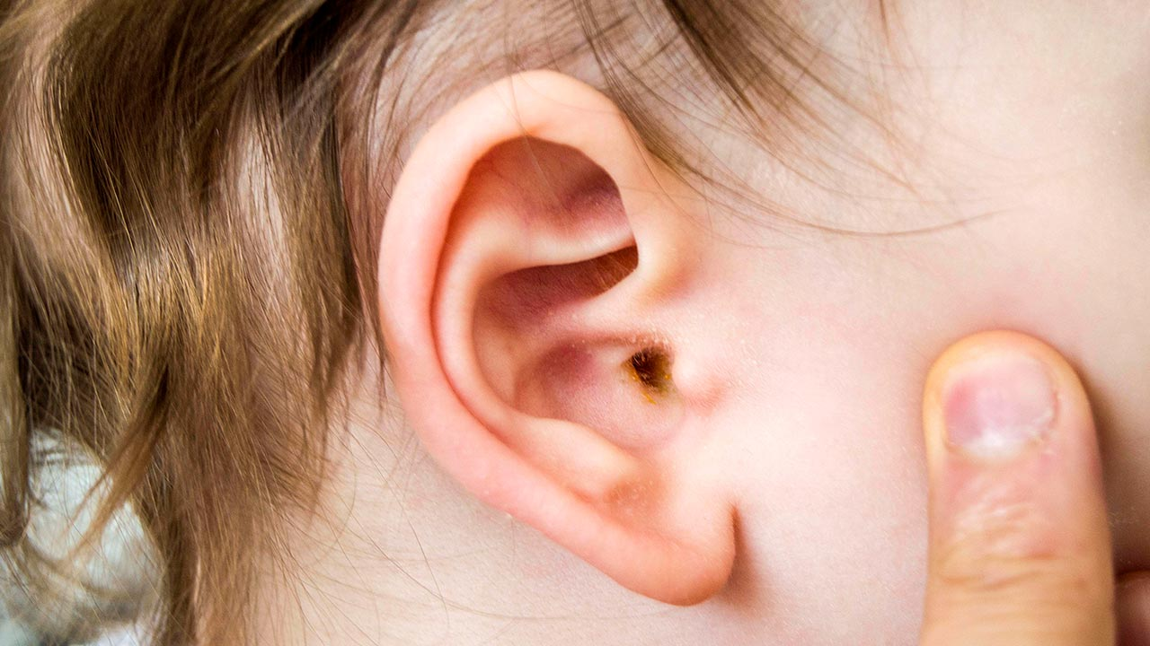 Ear wax in children: what to do about it | Raising Children Network
