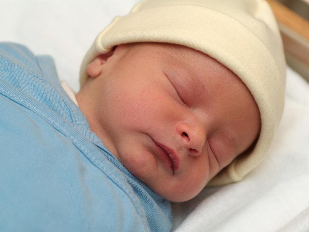 Jaundice In Newborns Raising Children Network