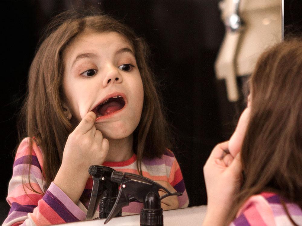 Oral thrush in babies and children | Raising Children Network
