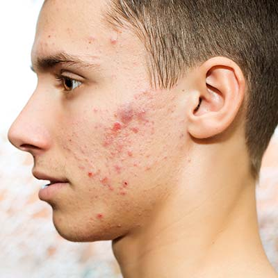 Teenage boy with many pimples on forehead, cheek and chin