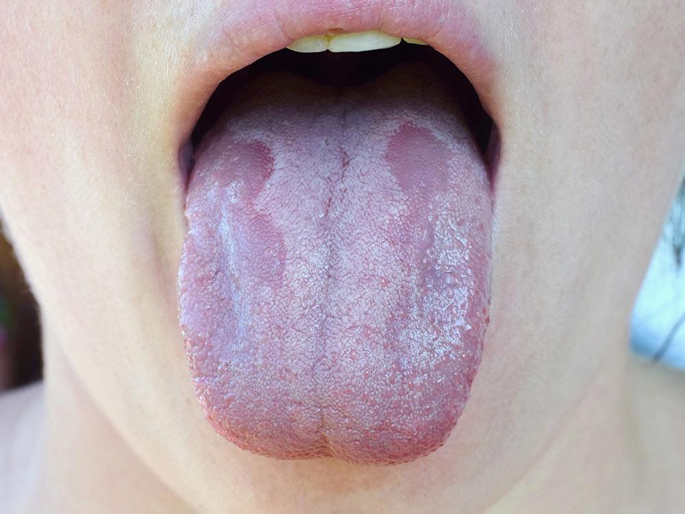 Oral Thrush In Babies And Children Raising Children Network