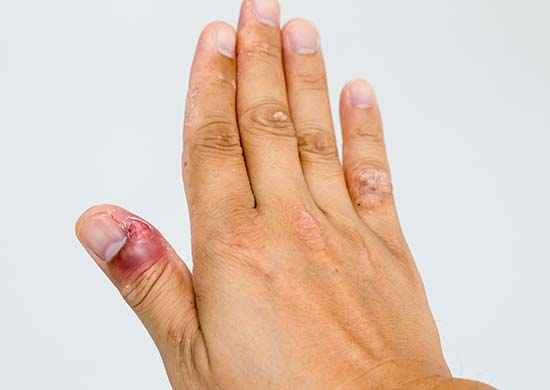 Fingernail infection with dark red broken skin around nail bed, exposing the flesh underneath.